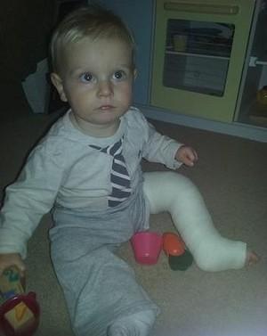 Maxwell ficou 4 semanas com a perna imobilizada