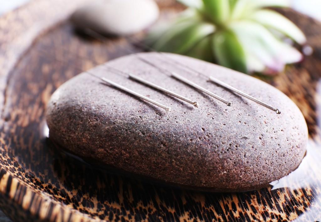 acupuntura para a família
