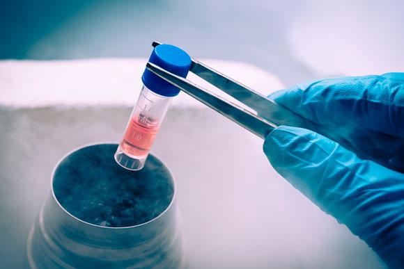 Pesquisas estão sendo feitas em busca de um tratamento para a renovação das células tronco (Foto: Shutterstock)
