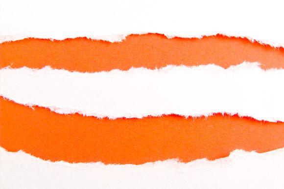 Aplicar hidratantes na pele pode diminuir o aparecimento de estrias (Foto: Shutterstock)