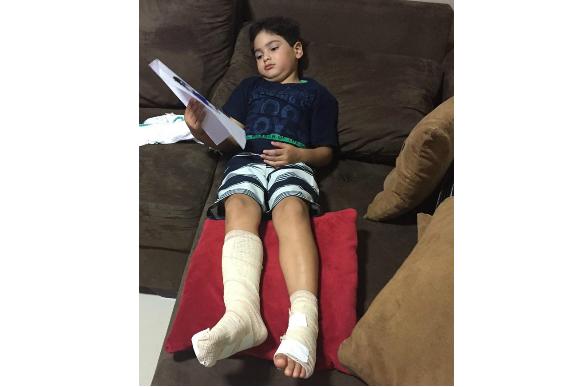 João sofreu queimaduras na perna, mas está se recuperando bem (Foto: Reprodução/ Facebook Mariana Vasconcelos)