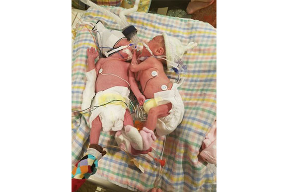 gêmeos-prematuros