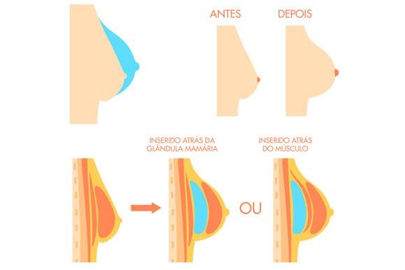 Esses são os tipos de incisão da prótese de silicone. Nenhum deles impede a amentação (Foto: Shutterstock)