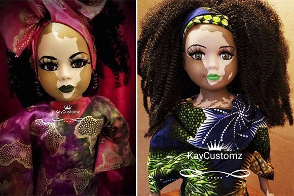 A artista Kay Black produz bonecas com vitiligo personalizadas (Foto: Reprodução/ Instagram @kaycustoms)
