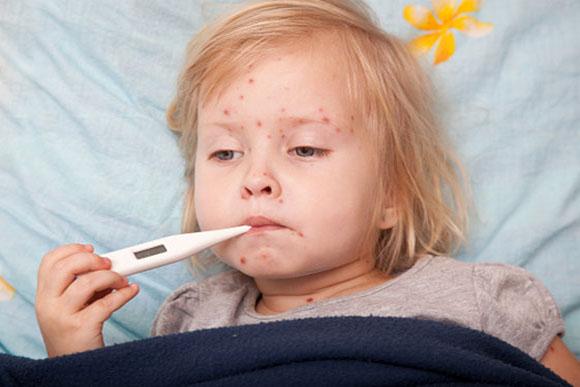Surte de catapora aconteceu por negligência de grupo antivacina (Foto: GettyImage)