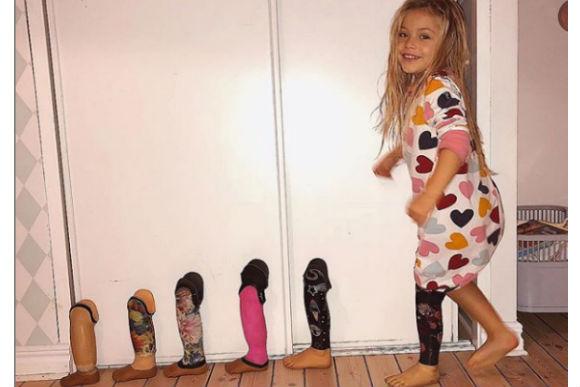 menina-perna-amputada