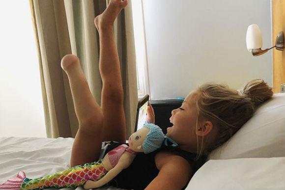 menina-perna-amputada2