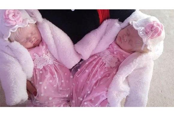 Elas são as primeiras gêmeas albinas da Argentina (Foto: Reprodução/ Portal +Vibes)