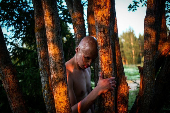 Lyosha, o menino que foi jogado no fogo (Foto: reprodução PAVEL VOLKOV)