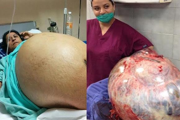 O tumor tinha mais de 60 kg (Foto: Reprodução/Notícias Bol)