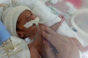 O bebê Theo nasceu de 29 semanas e contraiu covid que fez ele ficar entubado por 14 dias