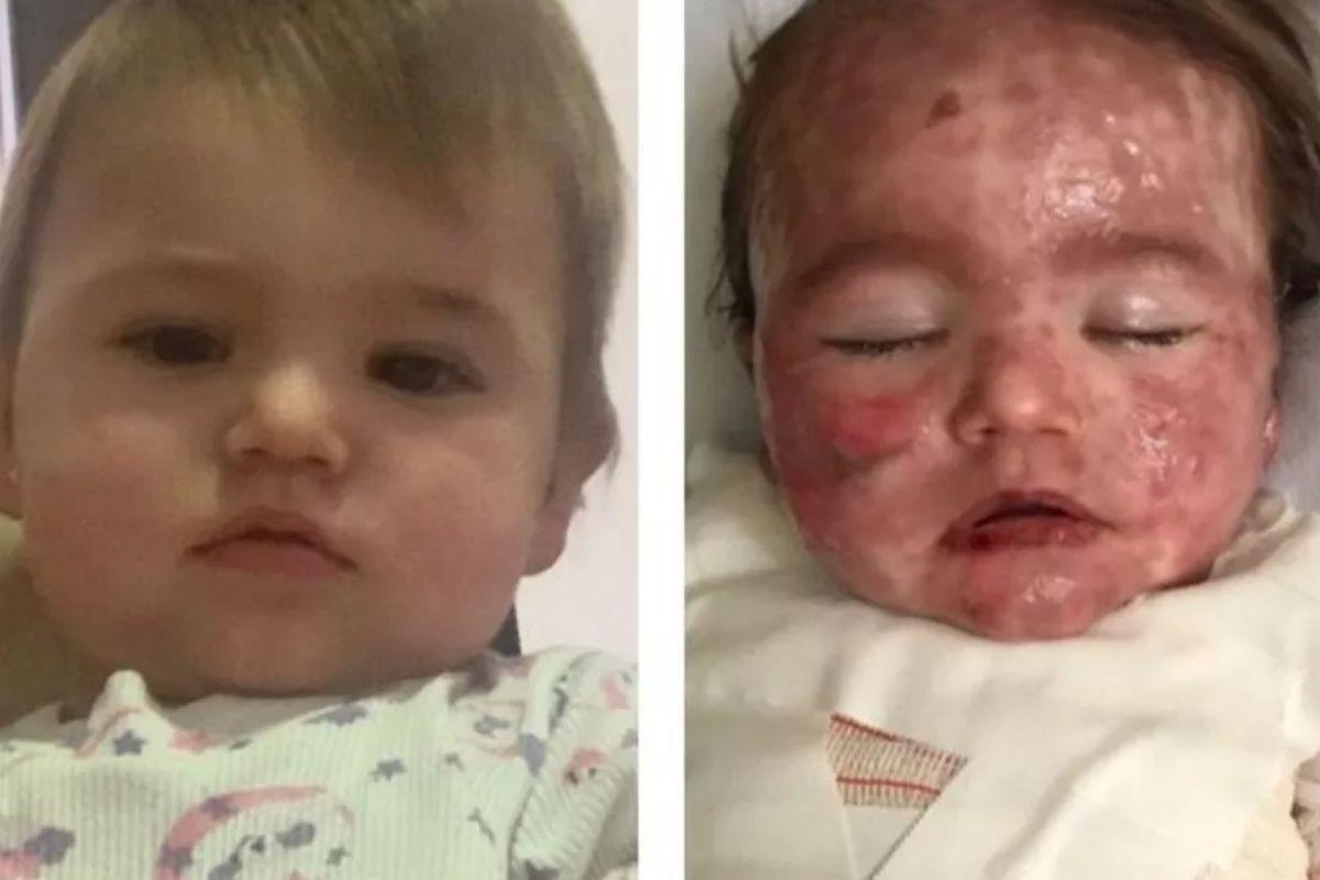 Bebê sofre queimaduras e fica em estado grave
