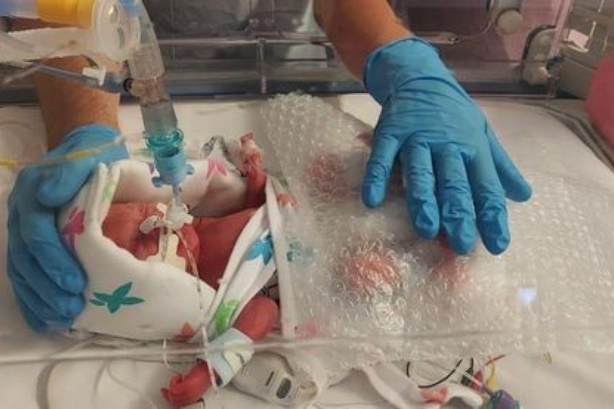 Darcey nasceu com 800 gramas e apenas 26 semanas
