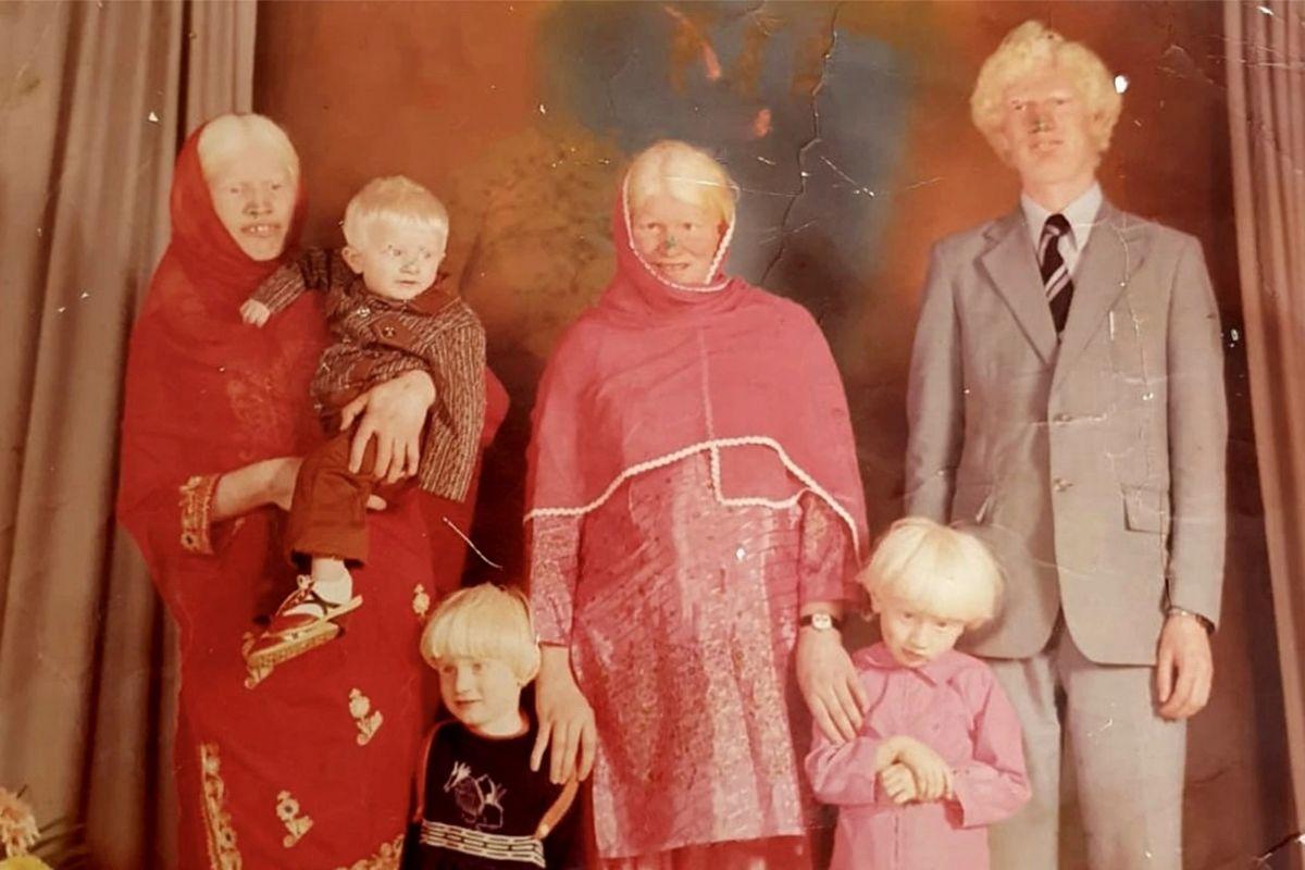 São muitas gerações com a condição genética