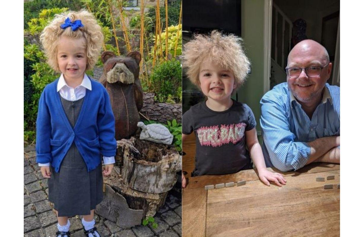 Florence foi diagnosticada com 3 anos com Síndrome do Cabelo Incompatível