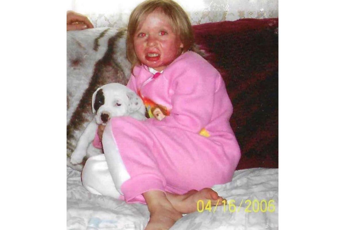 Charity Sutter com o cicatrizes de queimadura de terceiro grau aos 4 anos
