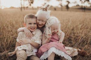Mãe faz relato sobre ter duas filhas albinas