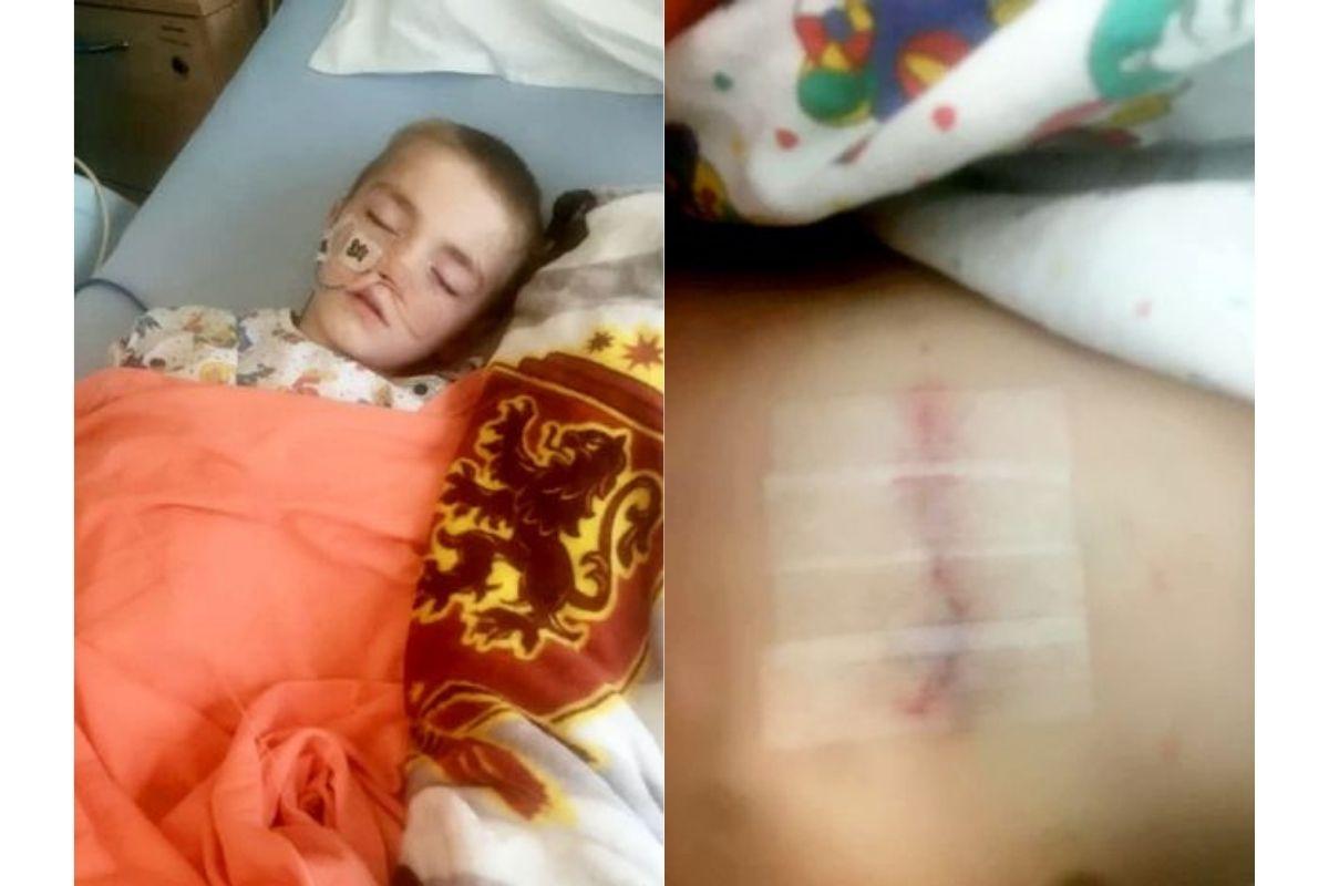 Mickey ficou com uma cicatriz após a cirurgia de remoção de metais